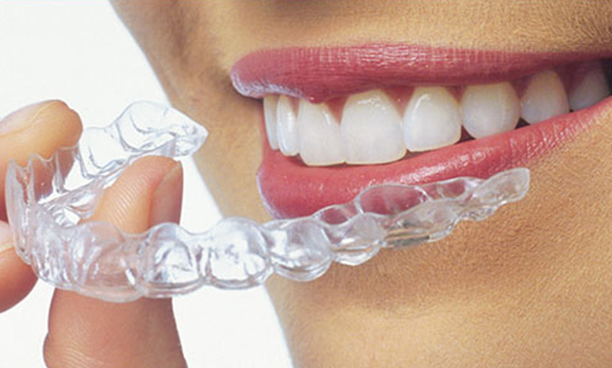 Invisalign NYC - Dentists, Costs, and Info on Clear Aligners